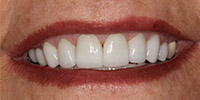 After receiving Porcelain Veneers in Arcadia