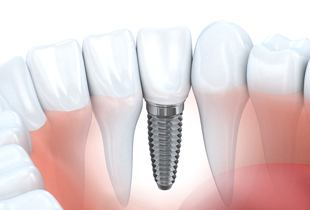 A diagram of a dental implant.