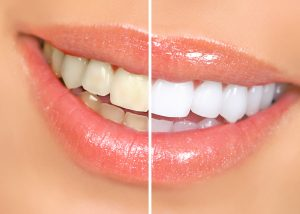 smile teeth whitening