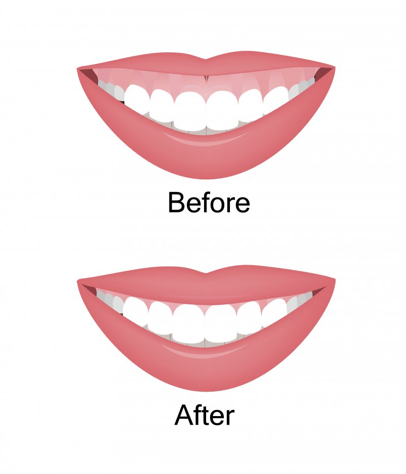 Illustration of gummy smile before and after treatment