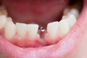 mouth open dental implant post