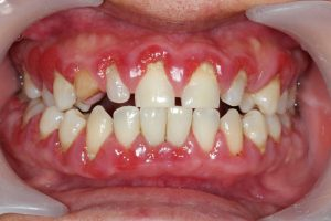 Dentist in Arcadia measures gum pocket depth