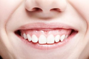 Close up of woman's smile with lots of gums